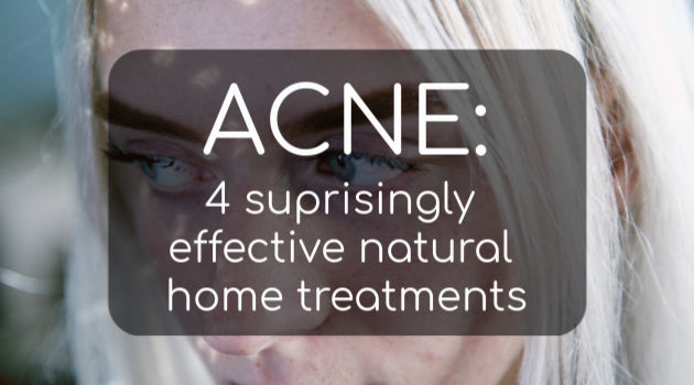 Acne: 4 Surprisingly Effective Natural Home Treatments
